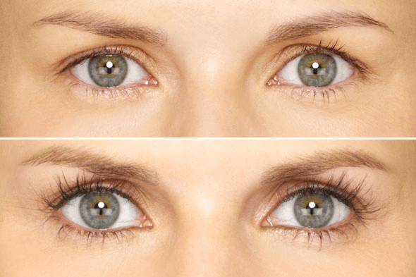 e1bd07483e3 If you have eye problems/surgery, consult your doctor about use of LATISSE®.  Common side effects are itchy and red eyes. If discontinued, lashes  gradually ...